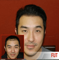 Cheap fue hair transplant in chandigarh