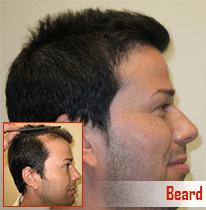 plastic surgeon in chandigarh