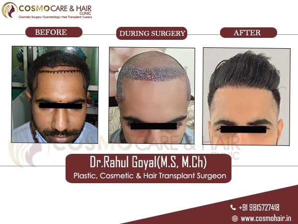 jaspreet hair transplant result