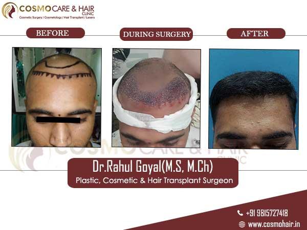 manoj yadav hair transplant result