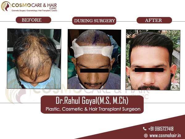 monti hair transplant result