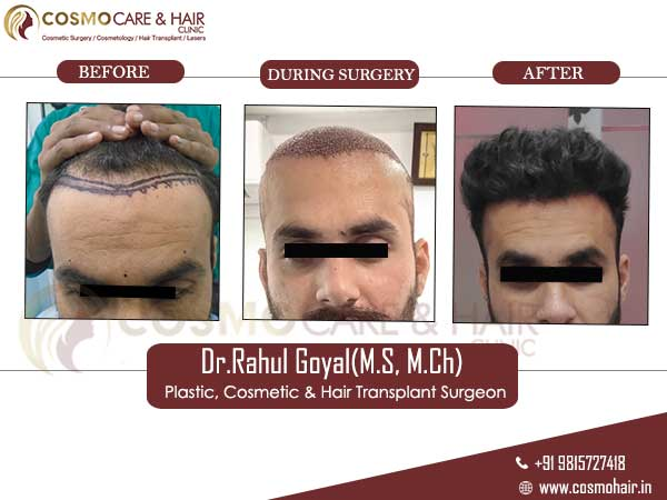 partap hair transplant result