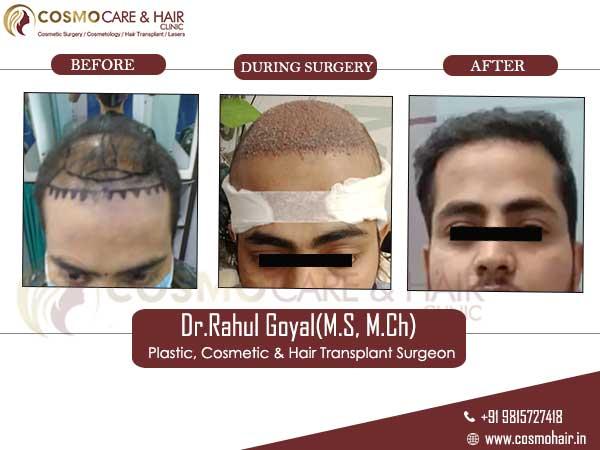 roshan hair transplant result