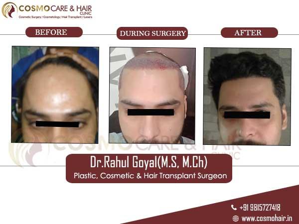 vinod hair transplant result