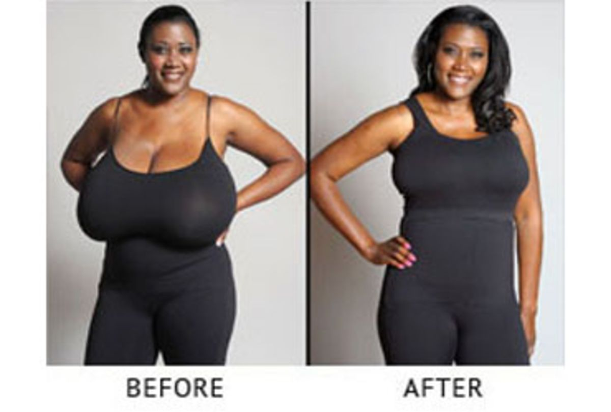 Breast Reduction Female