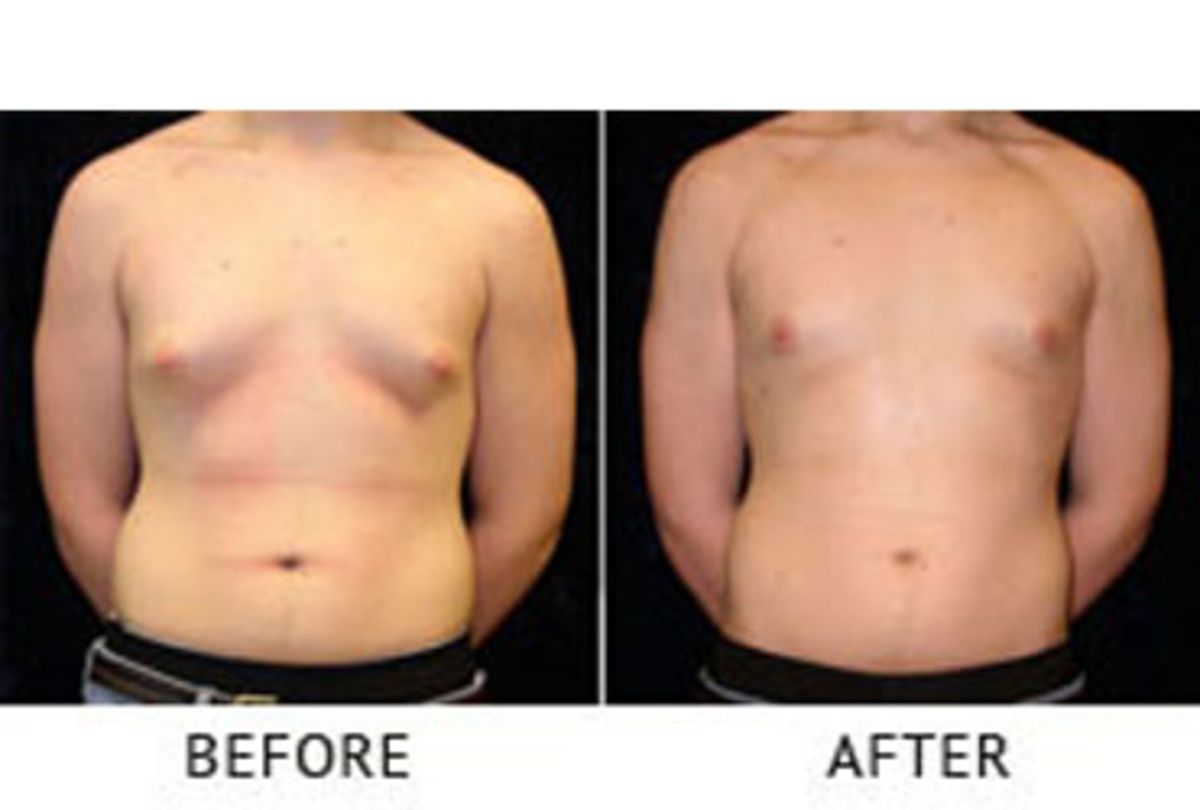 Breast Reduction Males