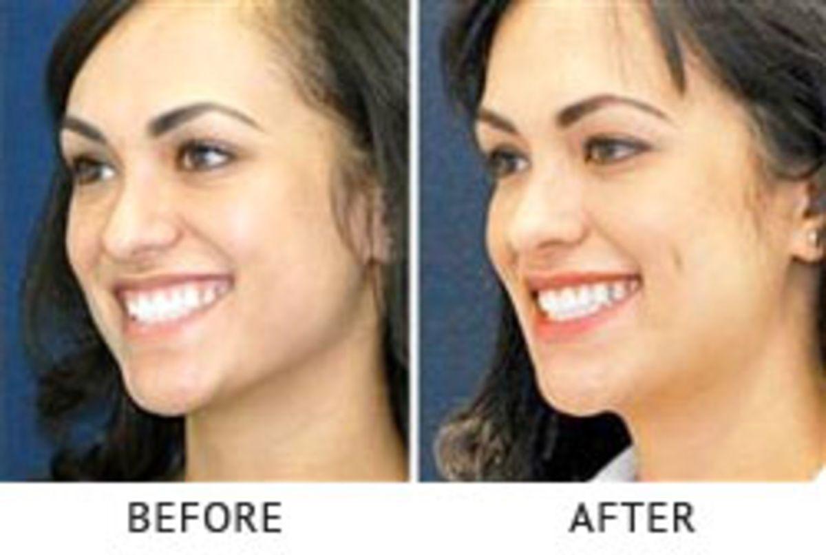 Cheek Dimple Surgery