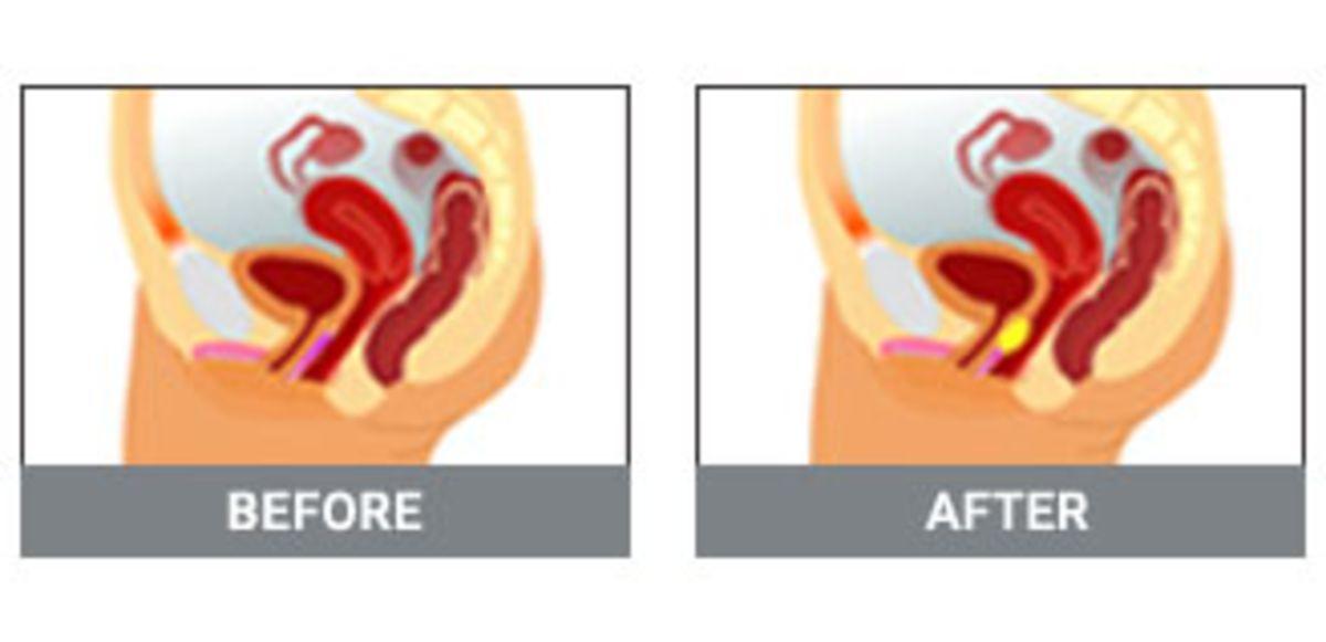 G-spot Augmentation Surgery