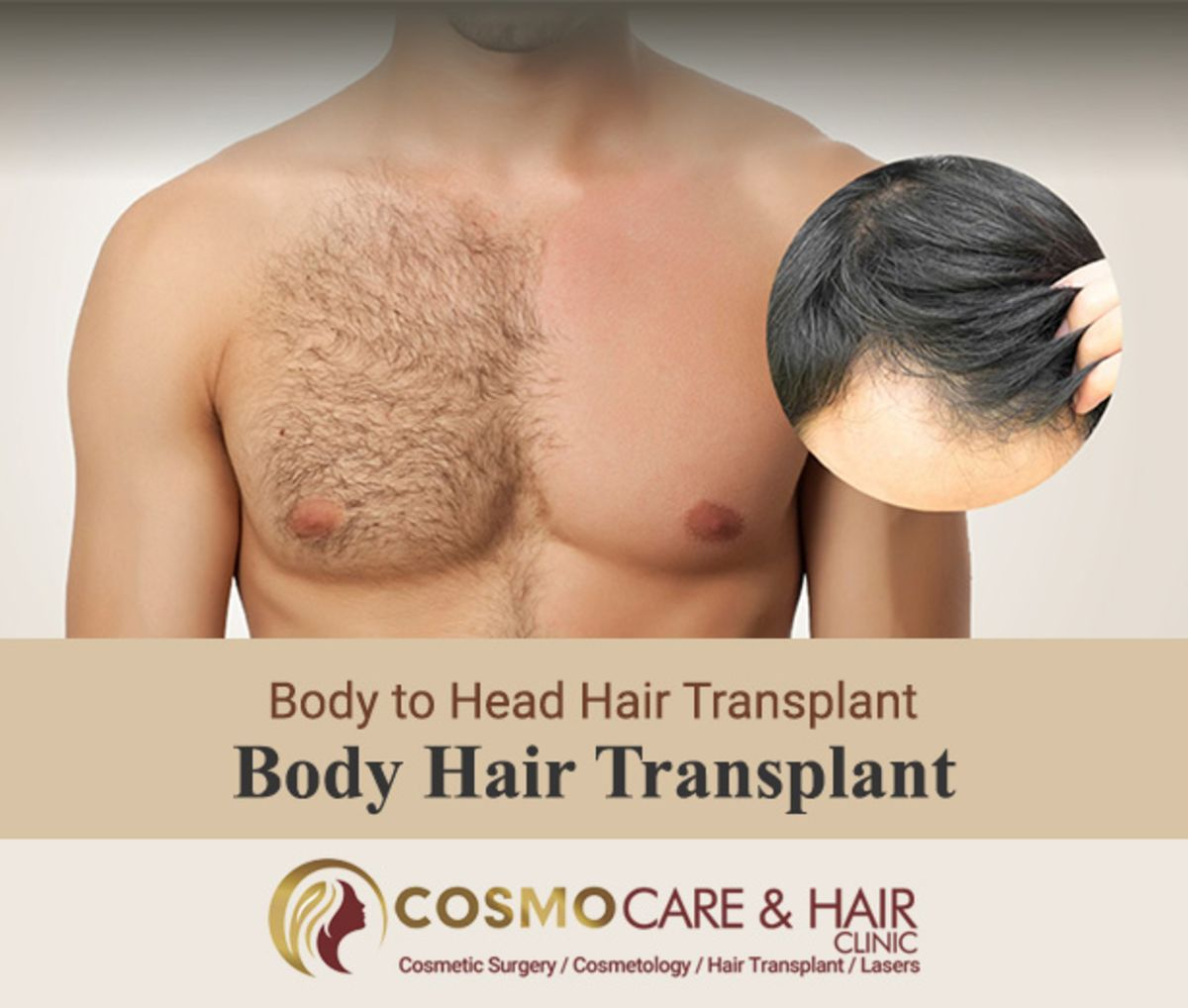 Hair Transplant By Body Hairs
