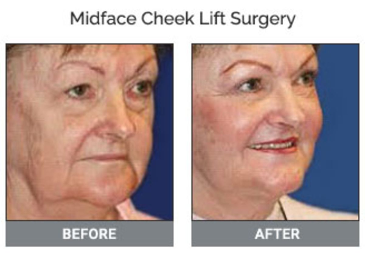 Midface Cheek Lift