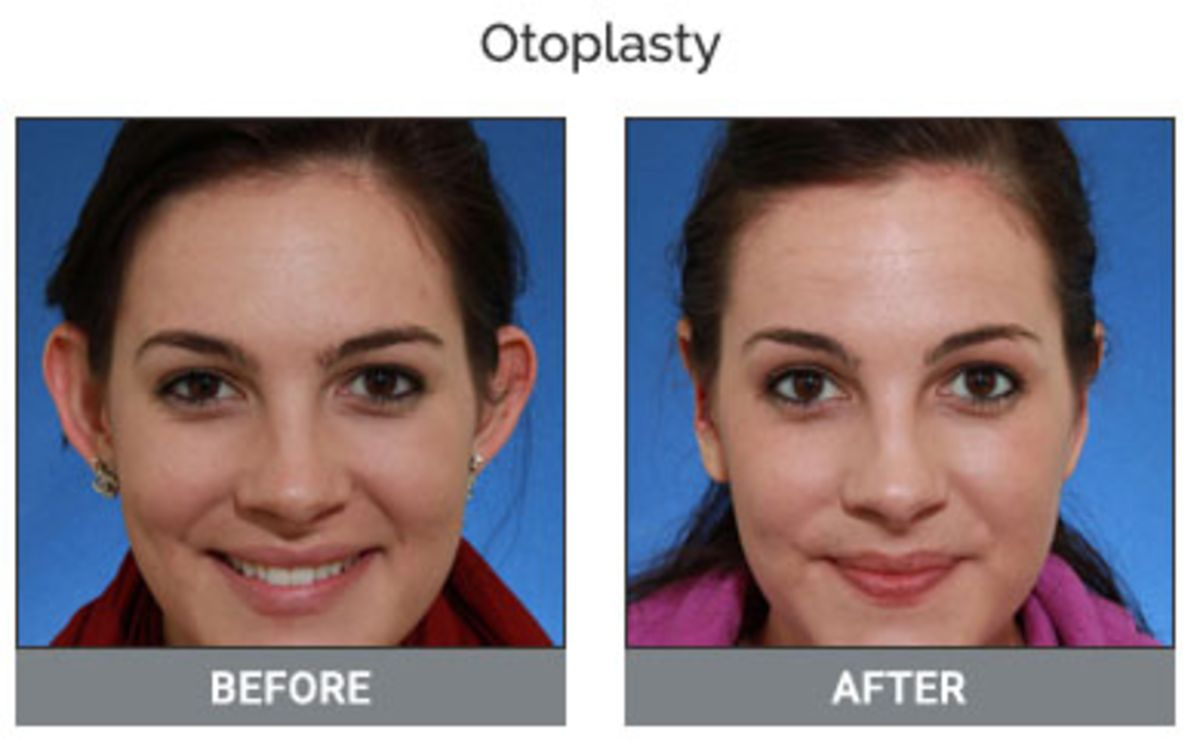 Otoplasty Treatment
