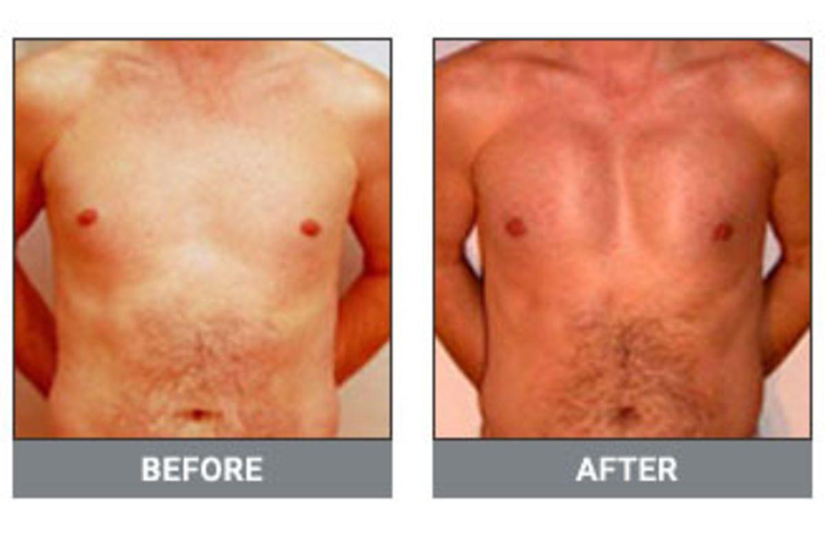Pectoral Implant Surgery