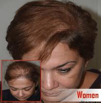 Laser hair Removal in Chandigarh